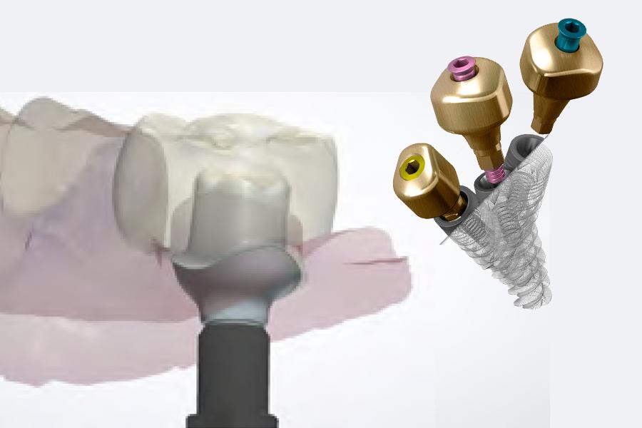 l u2019empreinte optique en implantologie